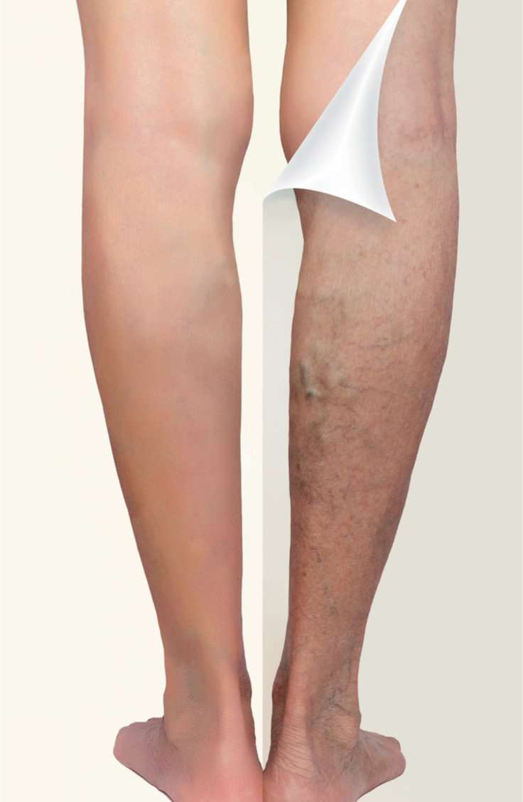 Leg vein before and afters