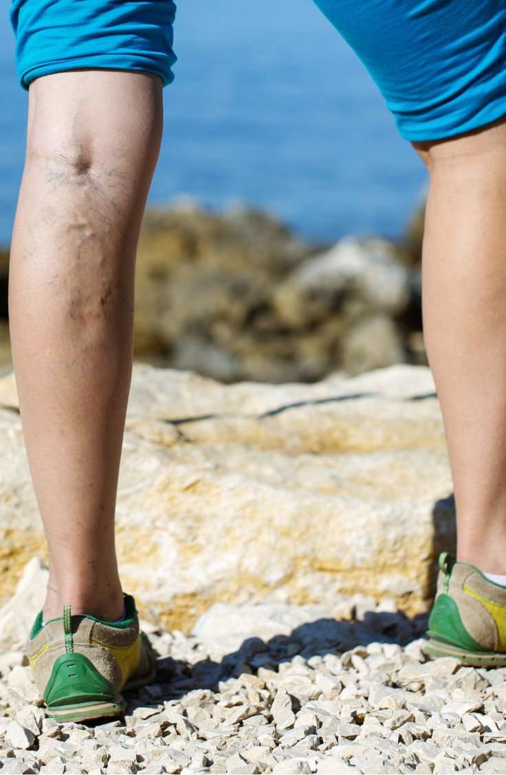 varicose vein treatment chicago il